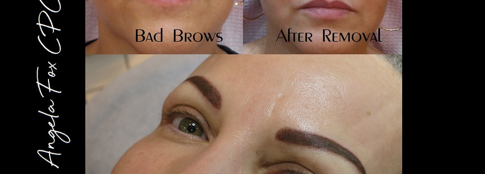 tattoo eyebrow removal houston dallas au