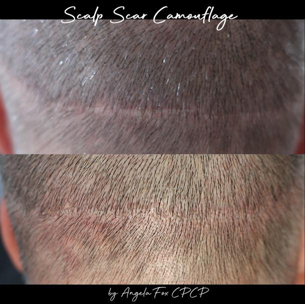 Scar scar camouflage.jpg