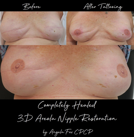 Areola tattoo replacement Texas.jpg