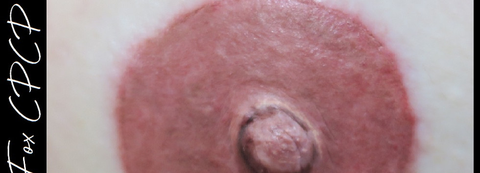 Areola Shape and color correction.jpg
