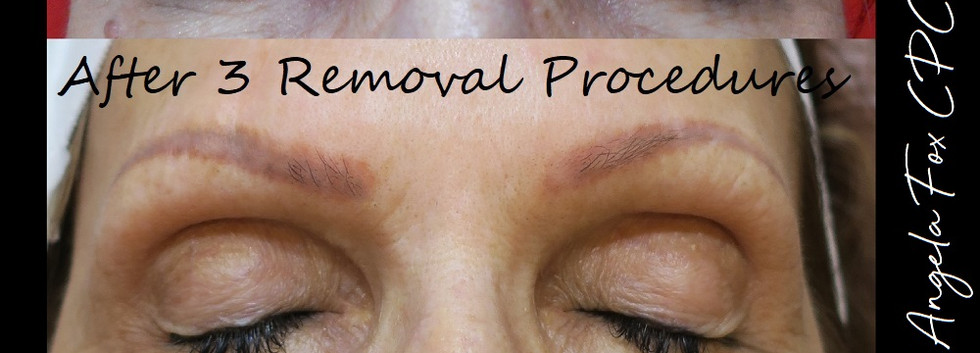 dark eyebrow tattoo removal with microbl