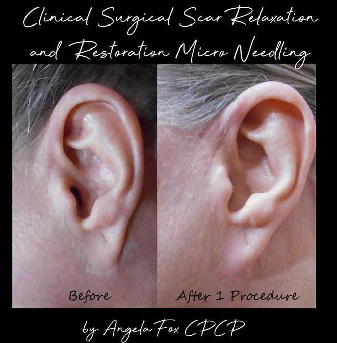 Post 1 ear.jpg