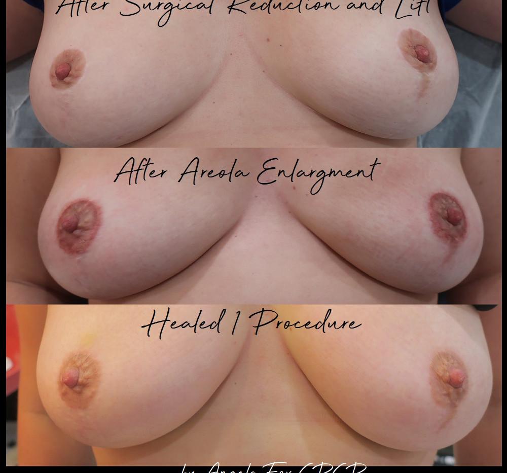 3d Nipple tattooing tacoma seattle.jpg