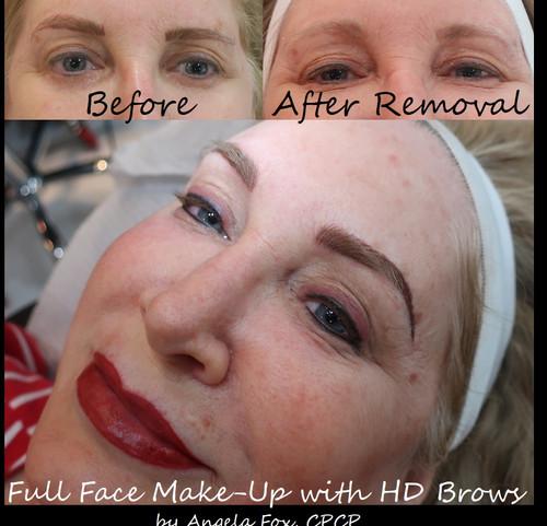 tattoo eyebrow removal.jpg