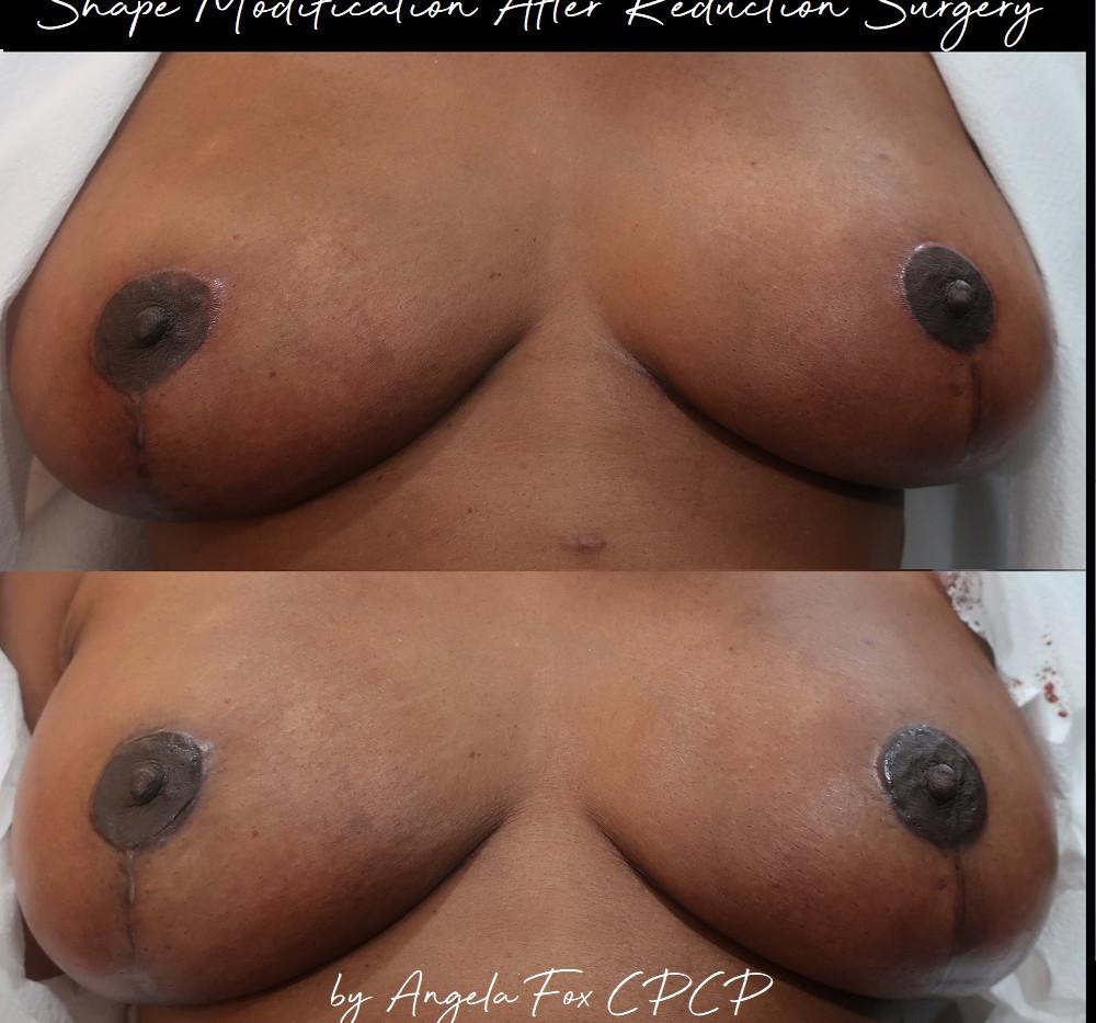 nipple tattoo repacement texas.jpg