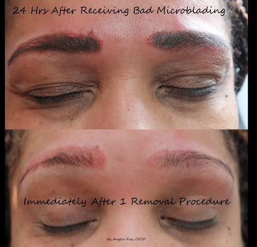 remove microblading brows.jpg