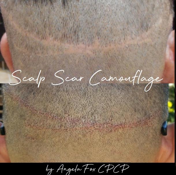scalp scar camouflauge.jpg