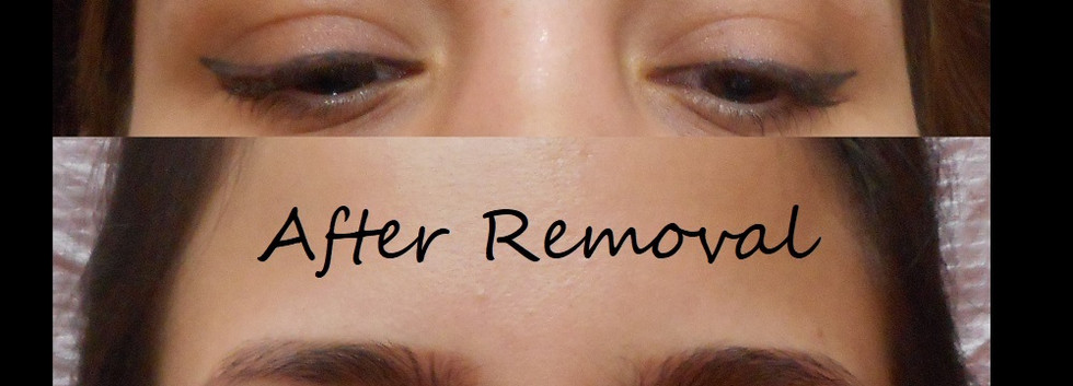 Brow tattoo removal correction.jpg