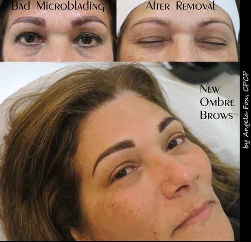 eyebrow tattoo microblading removal and