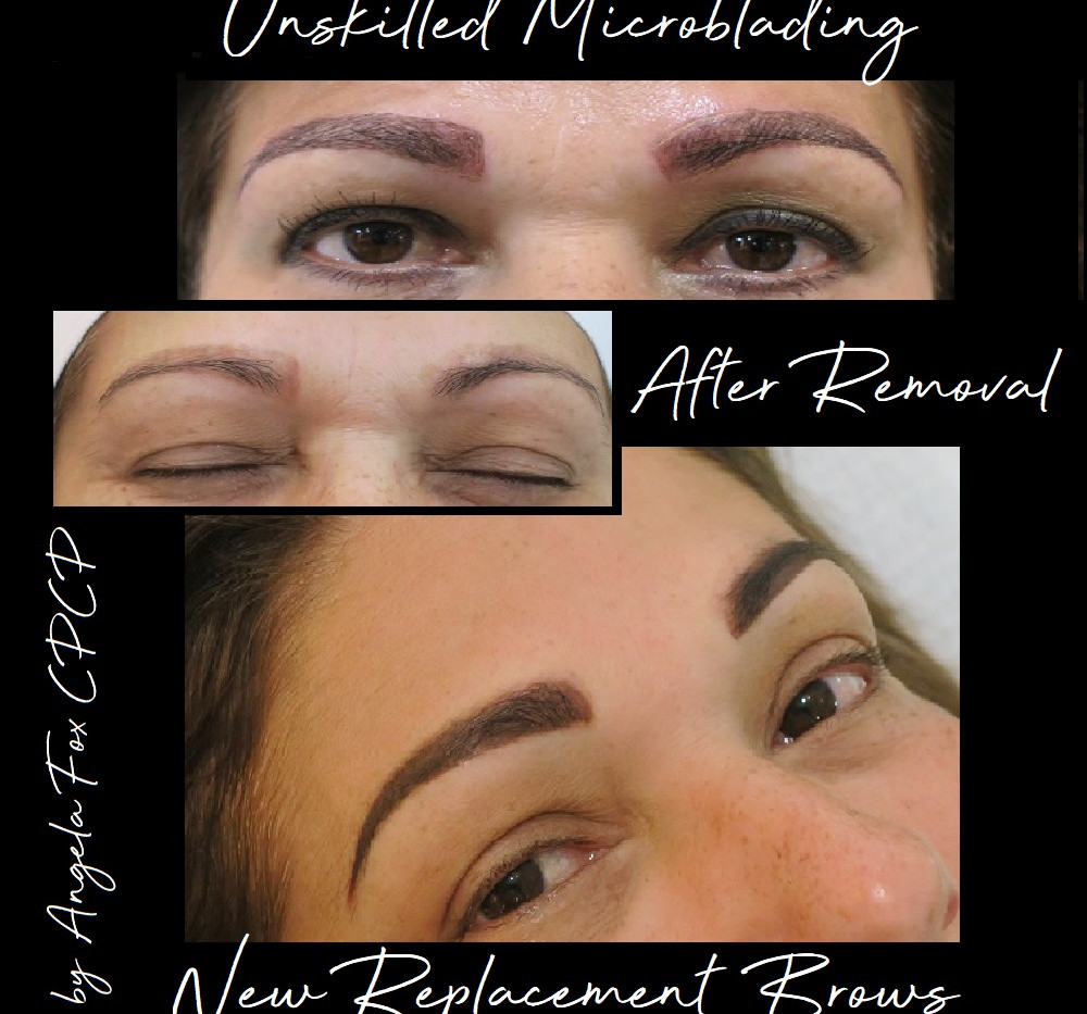 eyebrow tattoo microblading removal and
