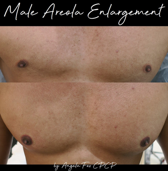 Male Areola Enlargment.jpg