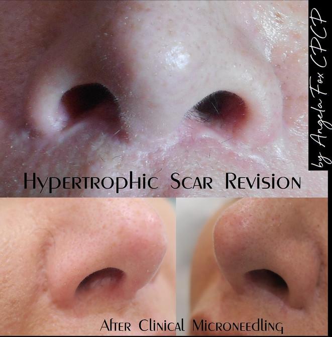 scar rejuvenation.jpg