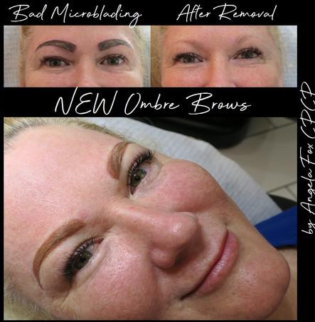 bad microblade eyebrow removal.jpg
