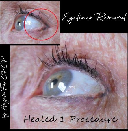 eyeliner Tattoo Removal.jpg