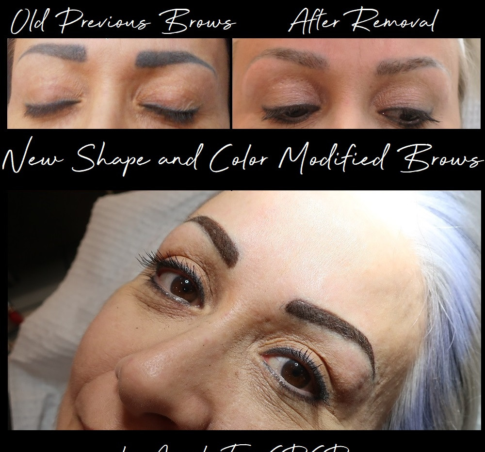 eyeBrow tattoo Saline Removal.jpg