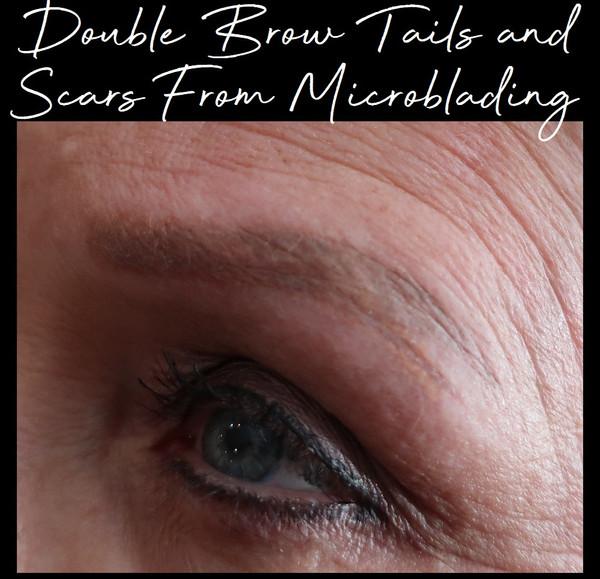 Bad scar microblading.jpg