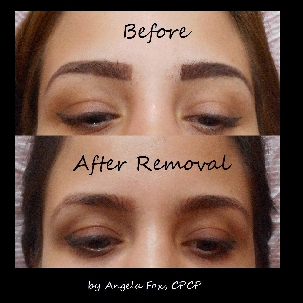 Brow Tattoo Removal Correction Jpg