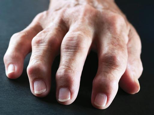 Nuova scoperta italiana, un batterio della bocca causerebbe l'artrite reumatoide