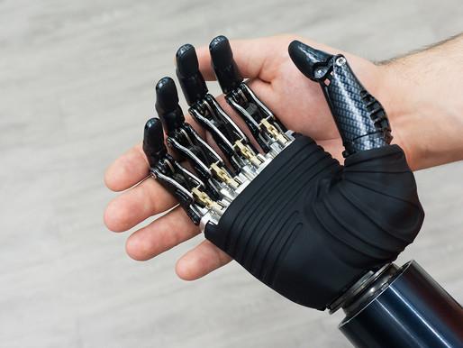 Una protesi bionica restituisce l'uso della mano ad un 18enne italiano
