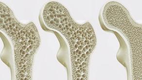 Dall'Italia arriva una nuova tecnica per studiare le ossa e l'osteoporosi