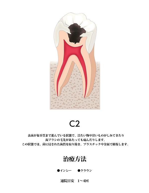 山本歯科虫歯C2