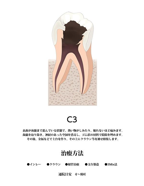 山本歯科虫歯C3