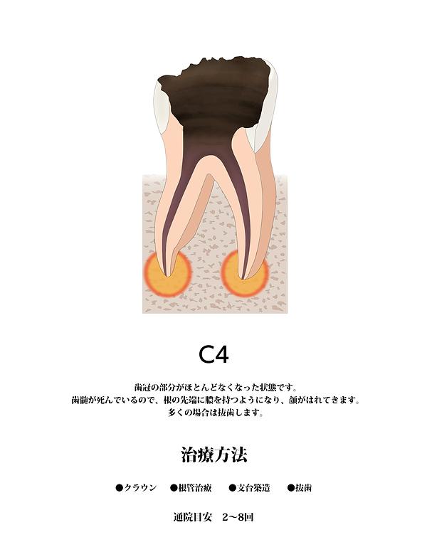 山本歯科虫歯C4