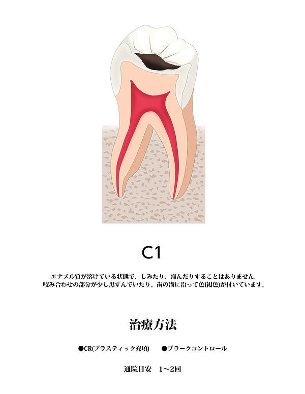 山本歯科虫歯C1