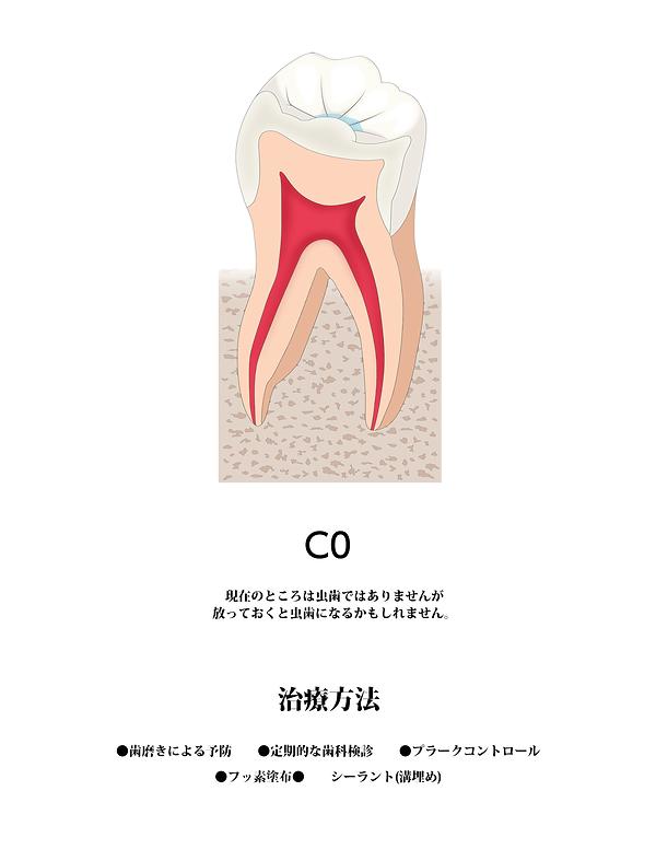 山本歯科虫歯C0