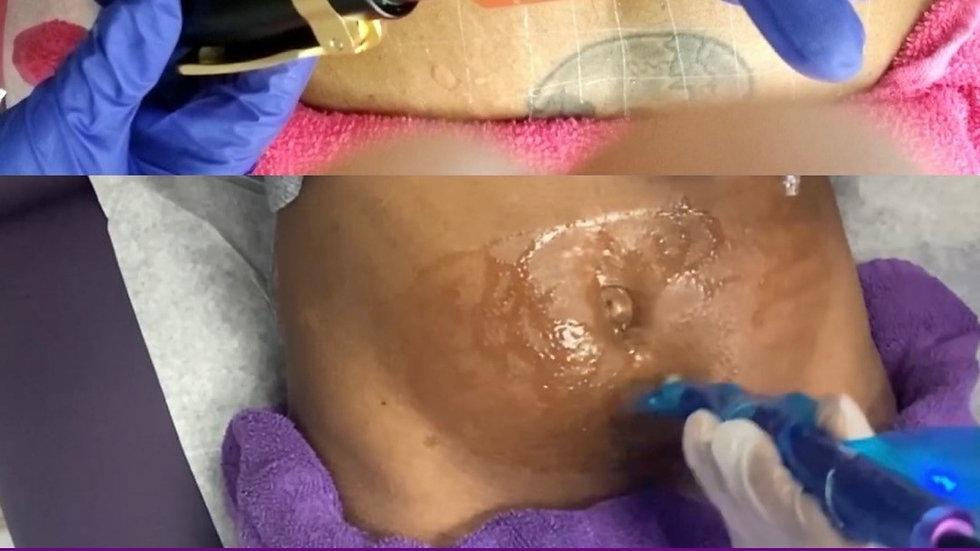 MesoLipo Fat Dissolve Course  Hyaluron Pen | Microneedle