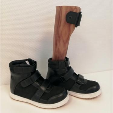 Ankel fod ortose