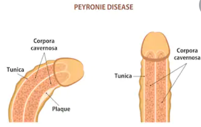 What Peyronie's disease looks like with fibrosis scar tissue and plaque build up