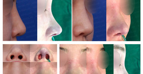 bulbous nose tip + notching nose + columella lengthening + balancing nostrils' asymmetry