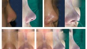 Reshaping bulbous nose tip + correcting hanging nose tip + columella lengthening