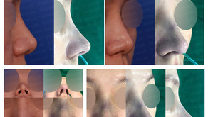 designing length + correcting hanging columella + reshaping nose tip(closed rhinoplasty)