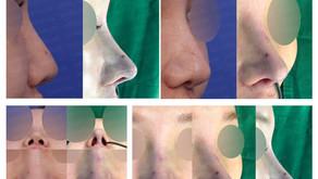 hanging nose + bulbous nose + deviated nose + nostrils' asymmetry + self rib cartilage