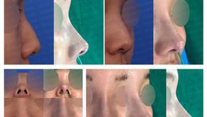 hump nose + hanging nose + upturned nose + designing length(closed rhinoplasty)