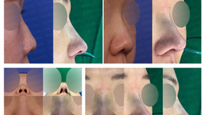 short nose + upturned nose + correcting retraction(closed rhinoplasty)