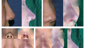 removing Artecoll filler + correcting hanging columella + reshaping bulbous nose tip