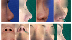 small nose + correcting short nose + bulbous nose + columella lengthening(closed rhinoplasty)