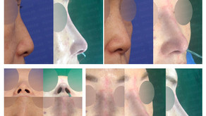 deviated nose + hanging nose tip + columella inserting + bulbous nose + nostrils' asymmetry