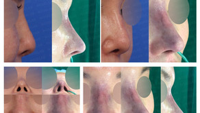 contracted nose + removing threads + designing glabella line + balancing nostrils' asymmetry