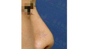 bulging glabella + hanging nose tip + balancing nostrils' asymmetry(revision closed rhinoplasty)