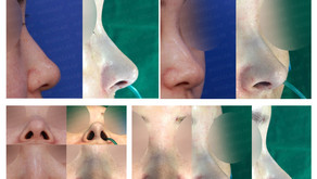 correcting deviated nose + correcting long nose + balancing nostrils' asymmetry(closed rhinoplasty)