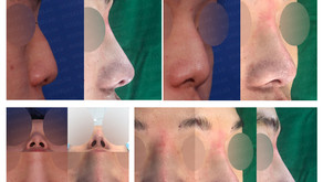 deviated nose + hump nose + hanging nose + upturned nose(closed rhinoplasty)
