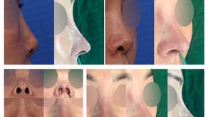 upturned nose + designing length + reshaping(revision rhinoplasty)