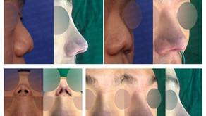 contracted nose + short nose + notching nose + columella lengthening + autologous costal cartilage