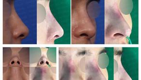 upturned nose + glabella line + dissolving filler + columella inserting(closed rhinoplasty)