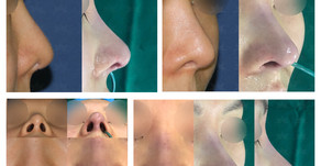 depressed nose + balancing nostrils' asymmetry(revision closed rhinoplasty)