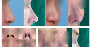 long nose + hanging nose tip + droopy nose tip + deviated nose + balancing nostrils' asymmetry